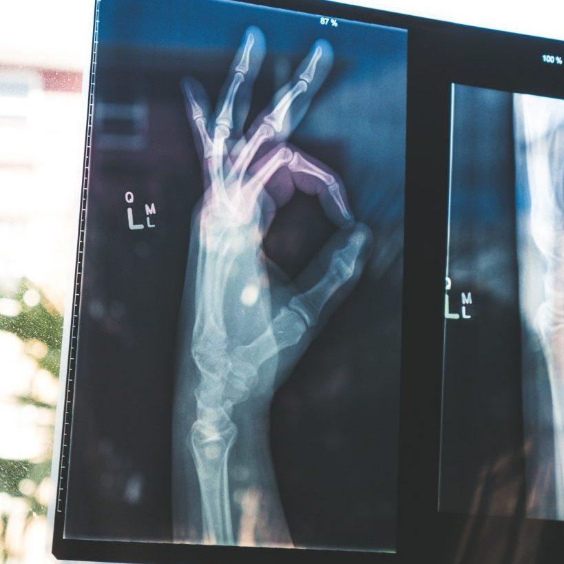 Daten in der Radiologie